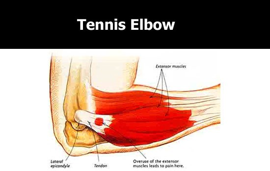 tennis elbow pain area