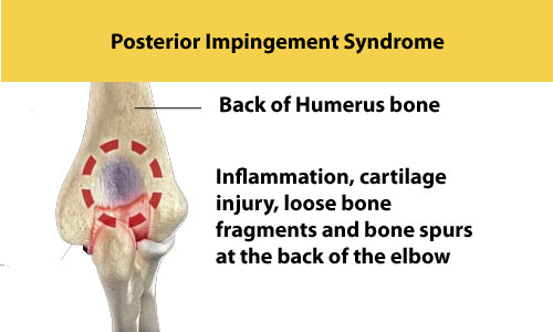 posterior impingement syndrome
